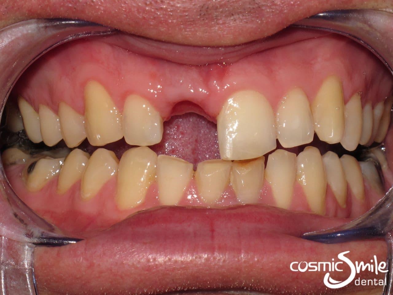 Casino direct dental northern lights casino carter wi