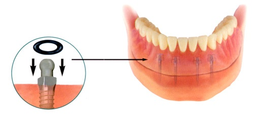 Denture secured by mini implants