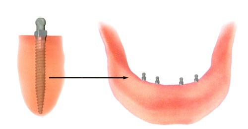 Mini implants in the jawbone